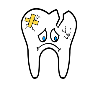 broken-tooth-2351797_1280