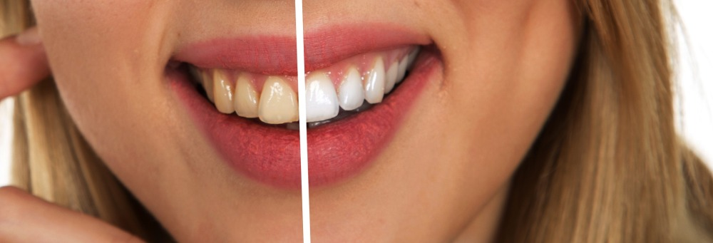 tooth-2414909_1920